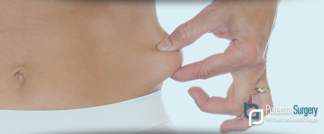 liposuction kelowna